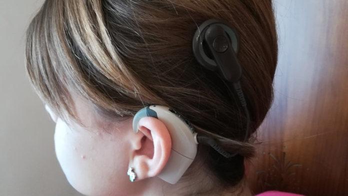 discapacidad-auditiva