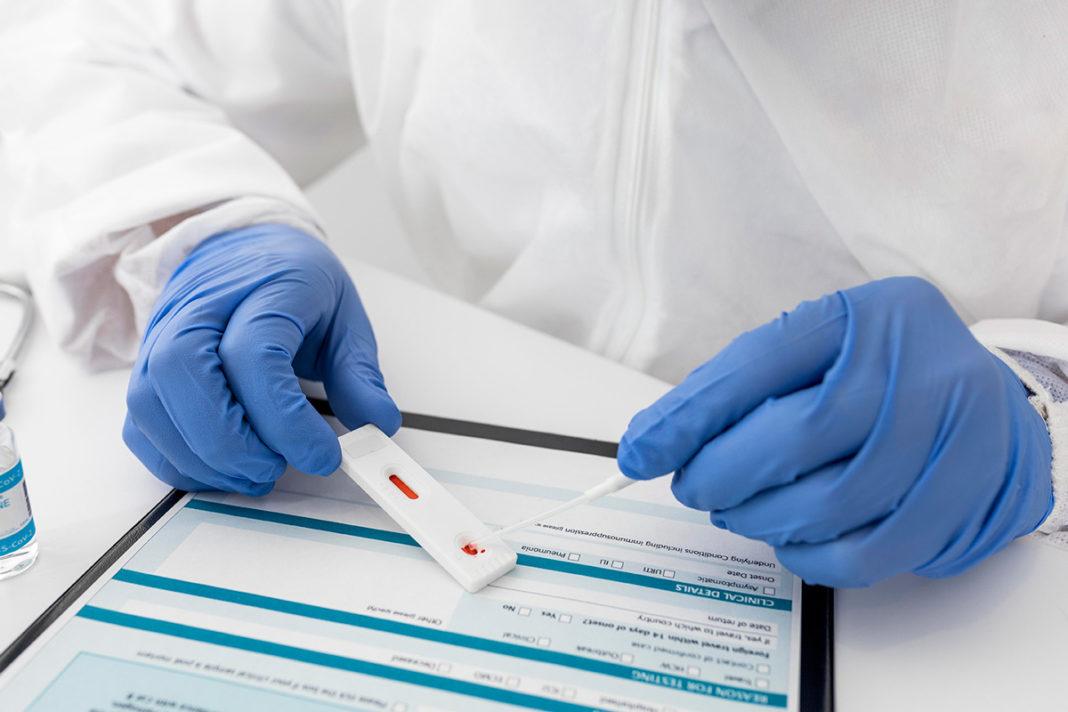 prueba de covid curva de casos activos infectados